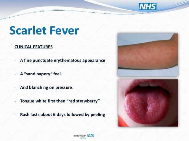 fever in adult Scarlet