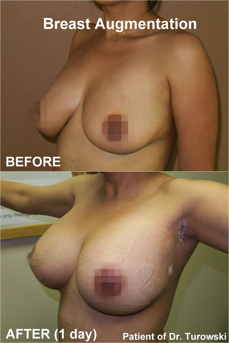 breast implants Strip