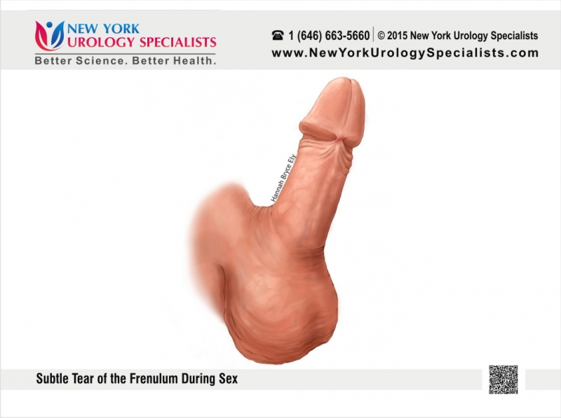frenulum penis Tight