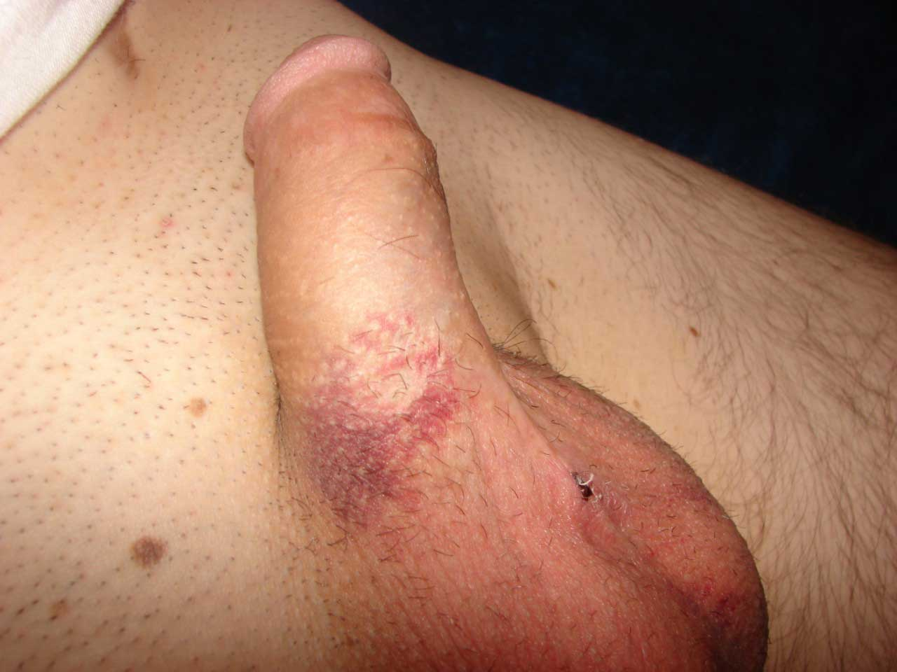 sex reversal vasectomy after Having a