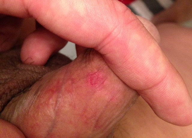 from Friction sex burn