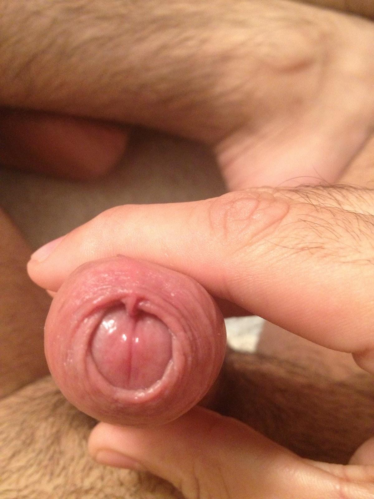 adult circumcision My
