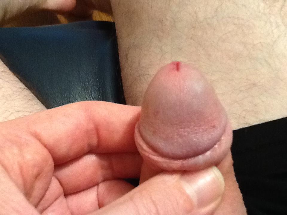 Penile rash worries man