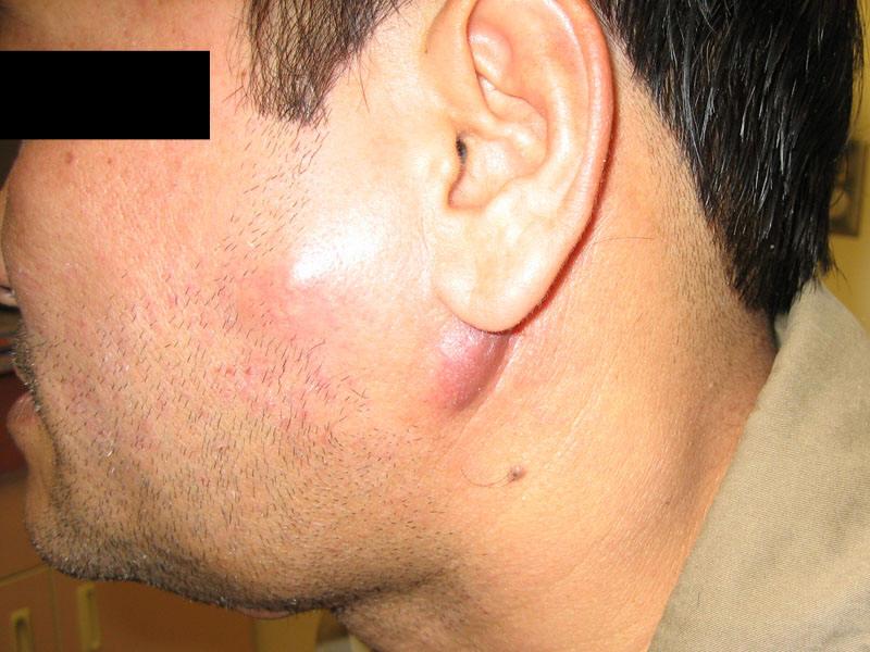 lymph node in swollen Adult